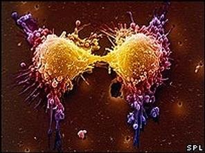 Voici ce dont cellules cancéreuses s'alimentent!