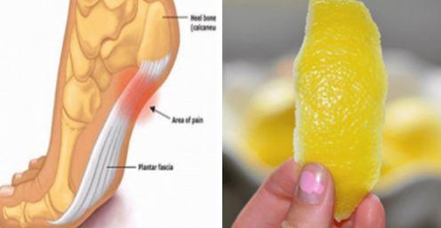 Voici comment utiliser la peau du citron pour soulager les douleurs articulaires !