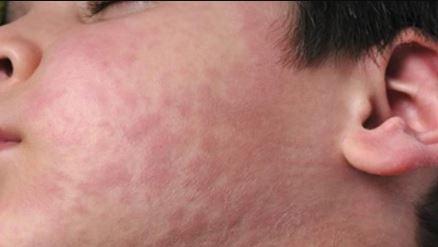Si vous constatez ces symptômes, couvrez-vous la bouche et consultez rapidement un médecin