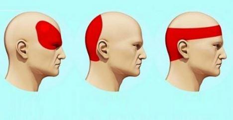 soignez les maux de tête en seulement 5 minutes sans faire recours à des médicaments à effets secondaires!