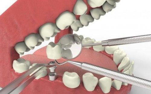 implant en cas d'agénésie dentaire